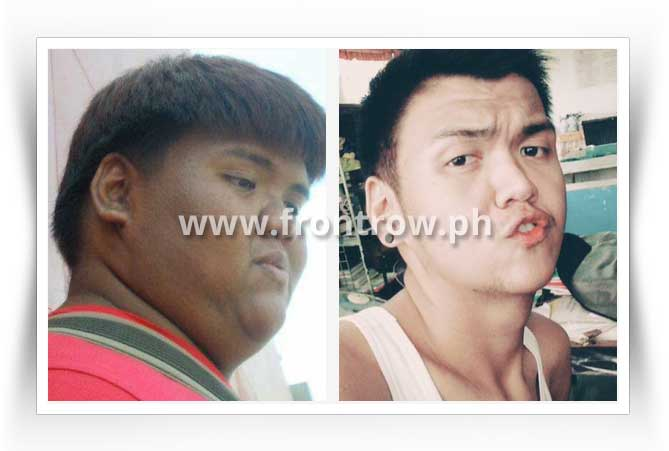 before-after-luxxe-slim-result-1