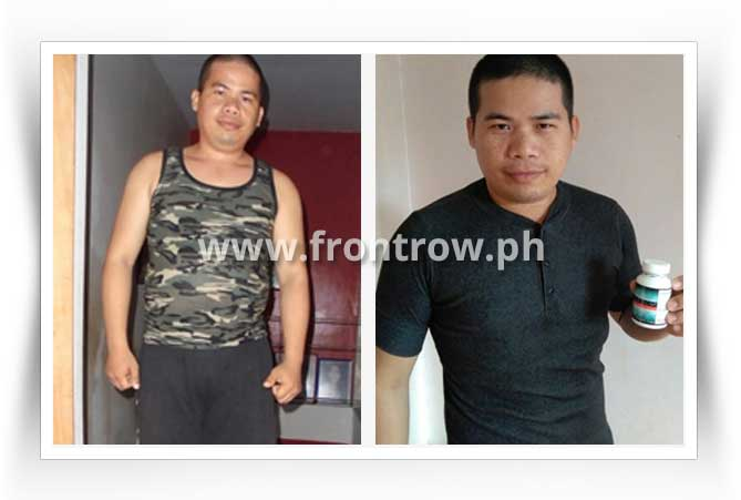before-after-luxxe-slim-result-5