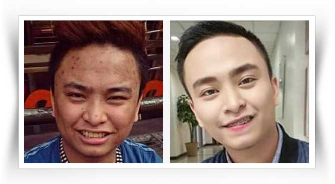 luxxe-white-before-after-result-1