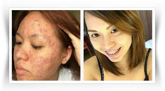 luxxe-white-before-after-result-2