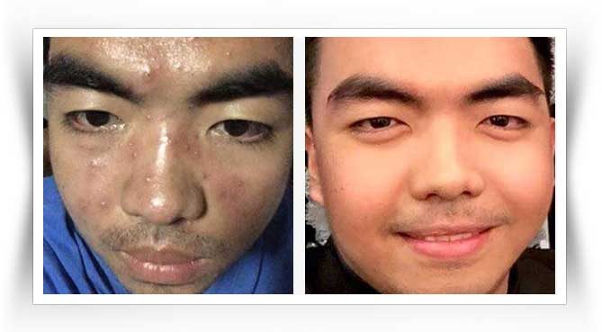 luxxe-white-before-after-result-5